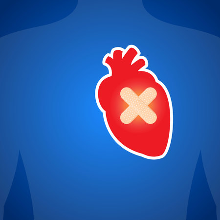 myocardium: The heart injury. On a blue background. Illustration.