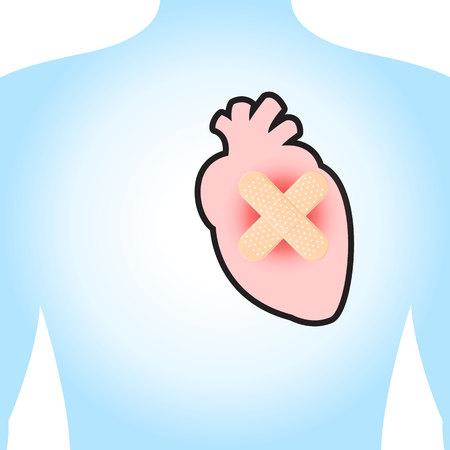 myocardium: The heart injury. On a blue background. Illustration.