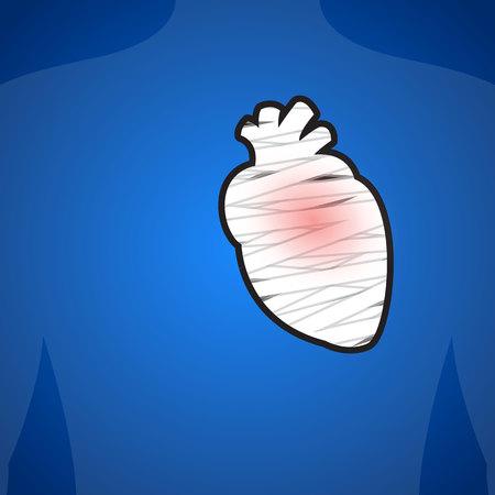 myocardium: L'infortunio del cuore. Su uno sfondo blu. Illustrazione.