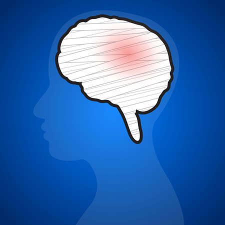 head injury: Brain injuries on a blue background. Illustration.