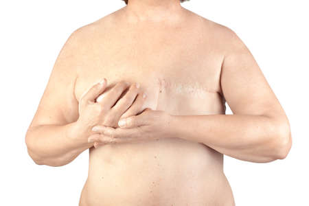 Breast cancer, breast removed on a white background photo