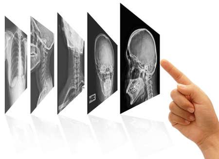art work of doctor hand choosing x ray films Stock Photo - 9595168