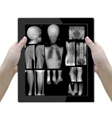 Xray films in tablet computer witj woman docter over white background.