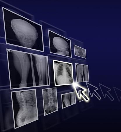 Gezondheidszorg concept van x ray films op gradient achtergrond.