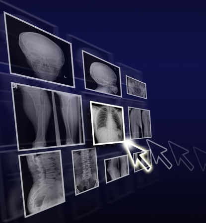 radiology: Health care concept by x ray films on gradient background.
