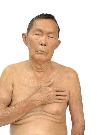 An old asian man with health problem action on white background. photo