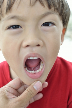 Close up first tooth after loss milk tooth asian boy. photo