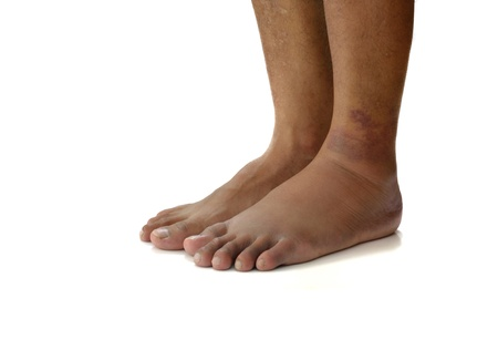 hematoma: Left ankle sprain swelling from trauma on white background.