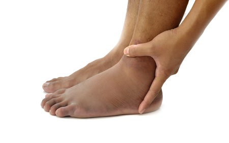 Left ankle sprain swelling from trauma on white background. Stock Photo - 14042565