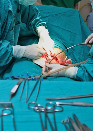 Real operation for cesarean section with new born infant in operating theater.