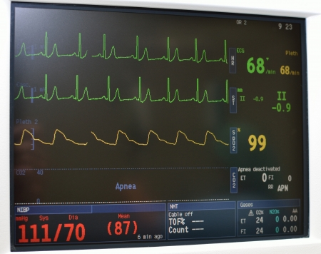 Vital signs  portable monitoring equipment in intensive care unit. photo