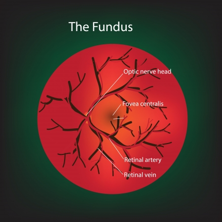 vision loss: Illustration of human fundus. Stock Photo