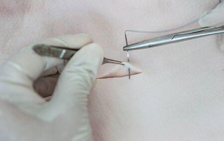 work material: Medical procedure Suturing skin. Stock Photo