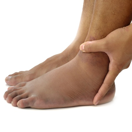 swelling: Left ankle sprain swelling from trauma on white background.