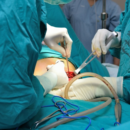 Real operation for cesarean section with new born infant in operating theater. photo