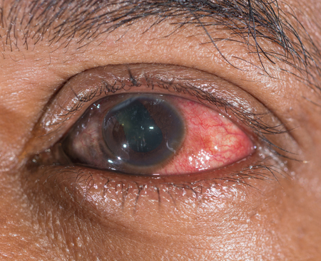 Close up of the traumatic eye ball ruptured during eye examination. photo