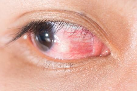 nodular: Close up of eye examination, nodular episcleritis.