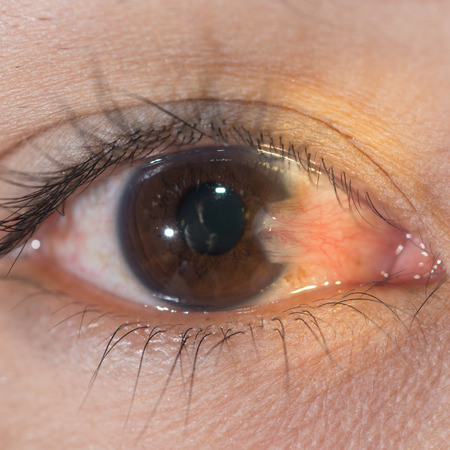 Close up of thepterygium during eye examination.