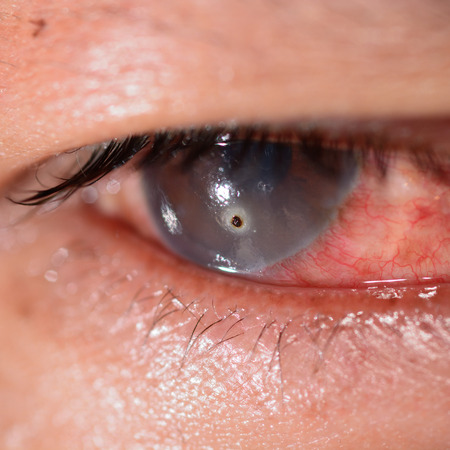 impair: Close up of the metallic foreign body on cornea during eye examination.