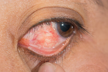 suture: Close up of the retain nylon suture at conjunctiva during eye examination.