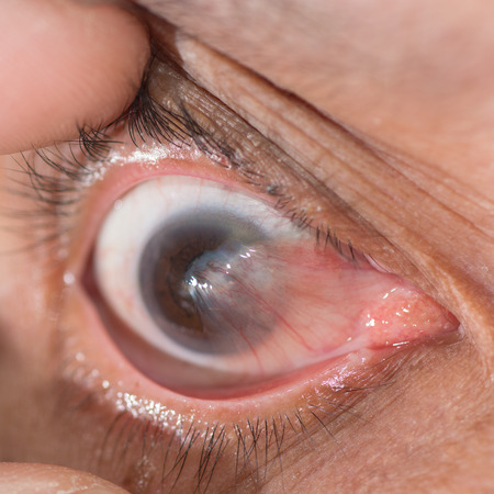 senile: Close up of the advance pterygium during eye examination.