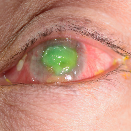 carcinoma: Close up of the conjunctival squamous cell carcinoma during eye examination.