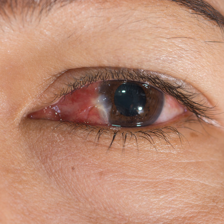 impair: Close up of the conjunctivitis and pterygium during eye examination. Stock Photo