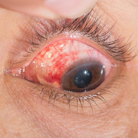 hemorrhage: Primo piano del sottocongiuntivali Emorragia durante l'esame degli occhi.