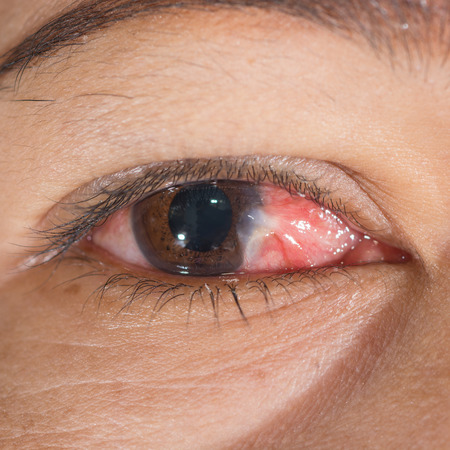senile: Close up of the conjunctivitis and pterygium during eye examination. Stock Photo
