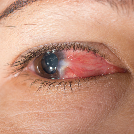 Close up of the conjunctivitis and pterygium during eye examination. photo