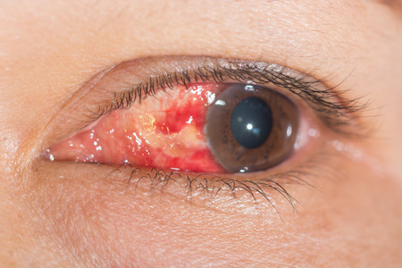 Close up of the Subconjunctival Hemorrhage during eye examination. photo