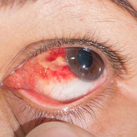hemorragia: Close up de la Hemorragia subconjuntival durante el examen de los ojos.