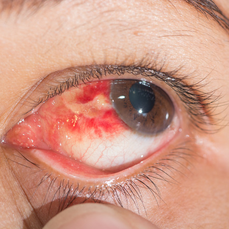 impair: Close up of the Subconjunctival Hemorrhage during eye examination.