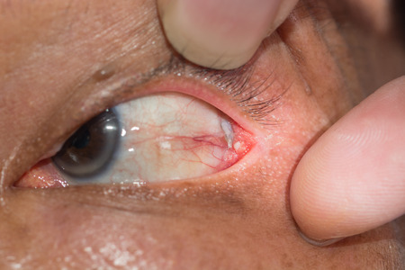 Close up of the conjunctival dermoid cyst during eye examination. photo