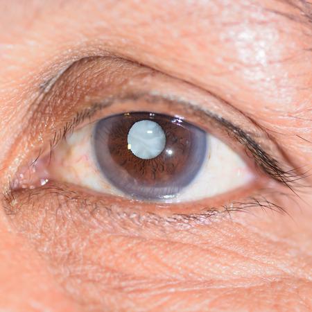 Cerca de la catarata madura durante un examen ocular. Foto de archivo - 27823501