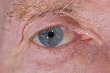 close up of the eye post cataract operation during eye examination.