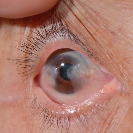 Close up of the advance pterygium during eye examination.