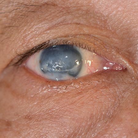 senile: Close up of the phthisis bulbi during eye examination.