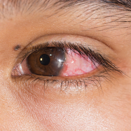 close up of the infected bacterial corneal ulcer during eye examination.