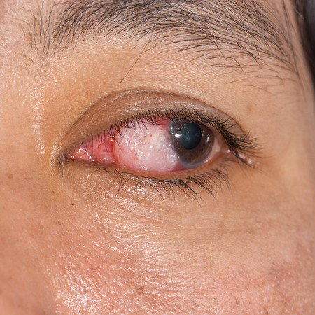 benign: close up of the eye tumor during eye examination.