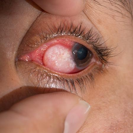 close up of the eye tumor during eye examination.