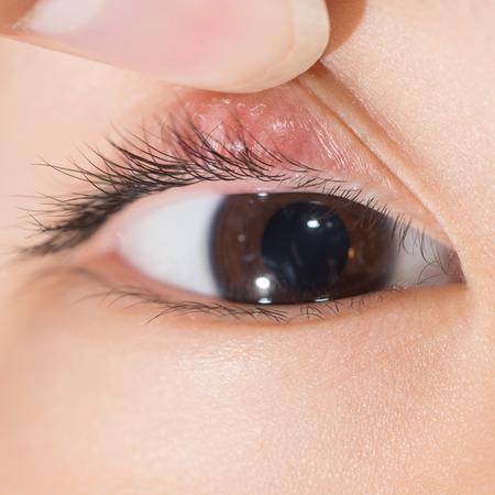 """şişme: Sağ üst göz kapağı apsesi """"arpacık"""". Stok Fotoğraf"""
