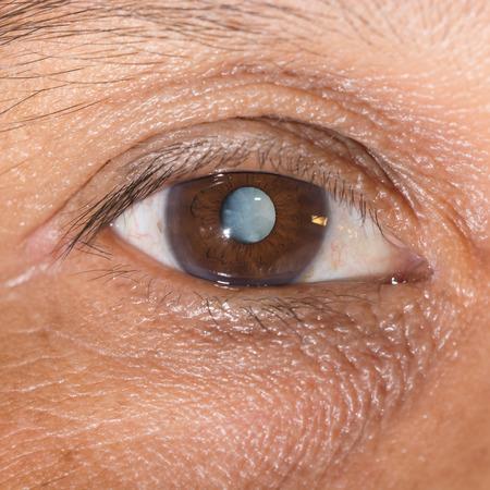 senile: Close up of the mature cataract during eye examination.