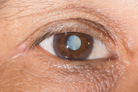 Close up of the mature cataract during eye examination. photo