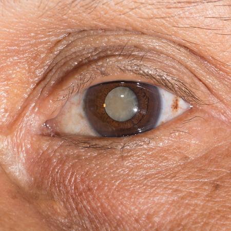 glaucoma: Close up of the mature cataract during eye examination.
