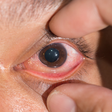 impair: Close up of the chemosis conjunctivitis during eye examination. Stock Photo