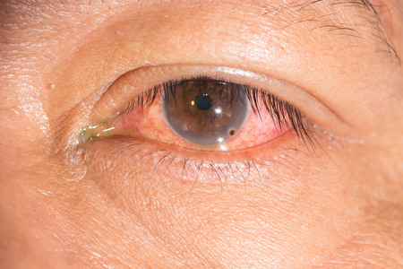 Close up of the metallic foreign body on cornea during eye examination. photo