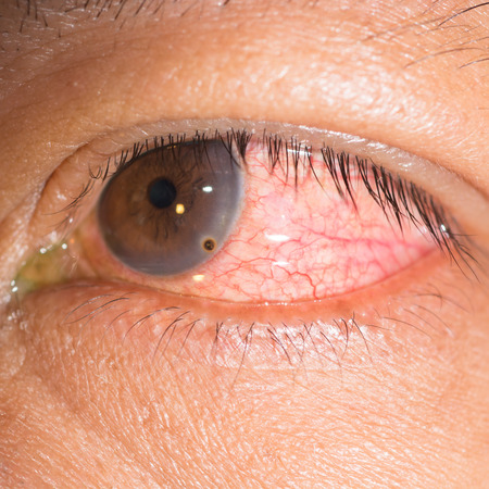 foreign bodies: Close up of the metallic foreign body on cornea during eye examination.