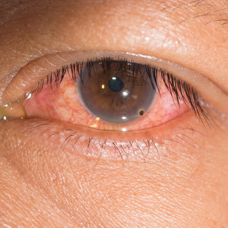 Close up of the metallic foreign body on cornea during eye examination.