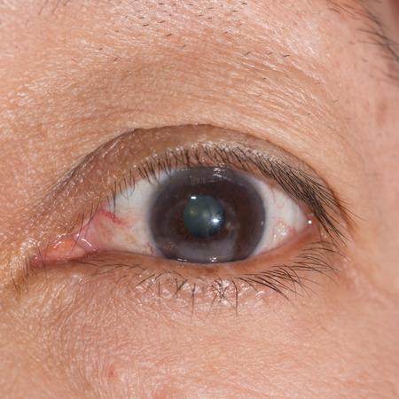 foreign bodies: Close up of the corneal scar during eye examination.